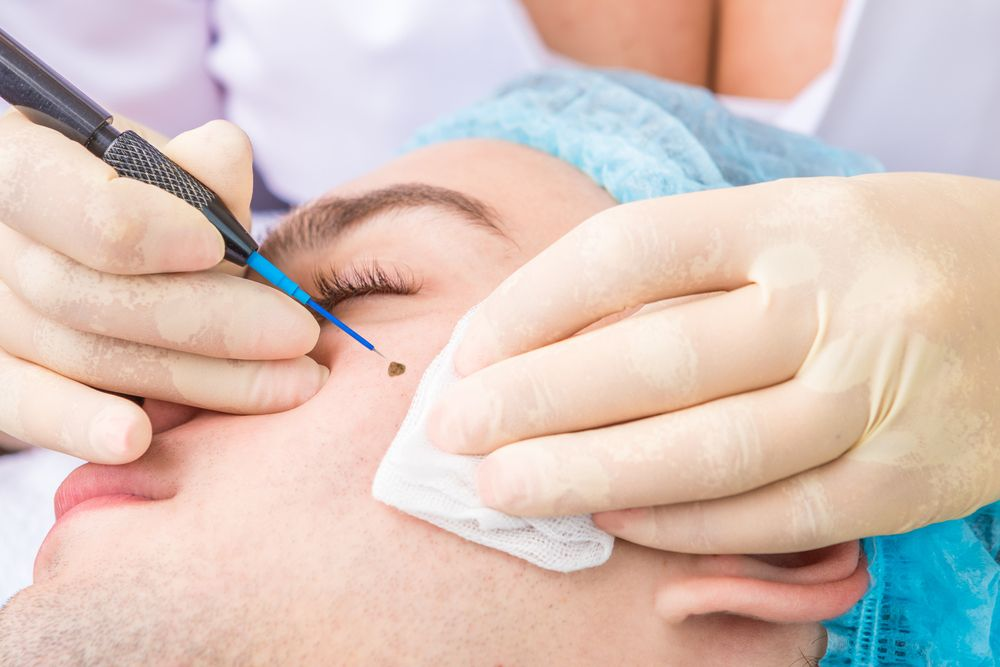 Mole Removal Aftercare: What You Need to Know